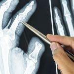 Ortopedia: una professione che esercita una nuova attrazione