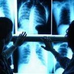 Specializzarsi in Radiodiagnostica: una testimonianza